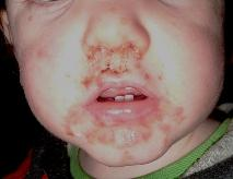 Hand, Foot and Mouth Disease and Pregnancy