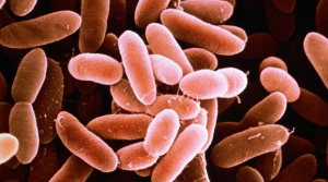 Listeriosis in Pregnancy